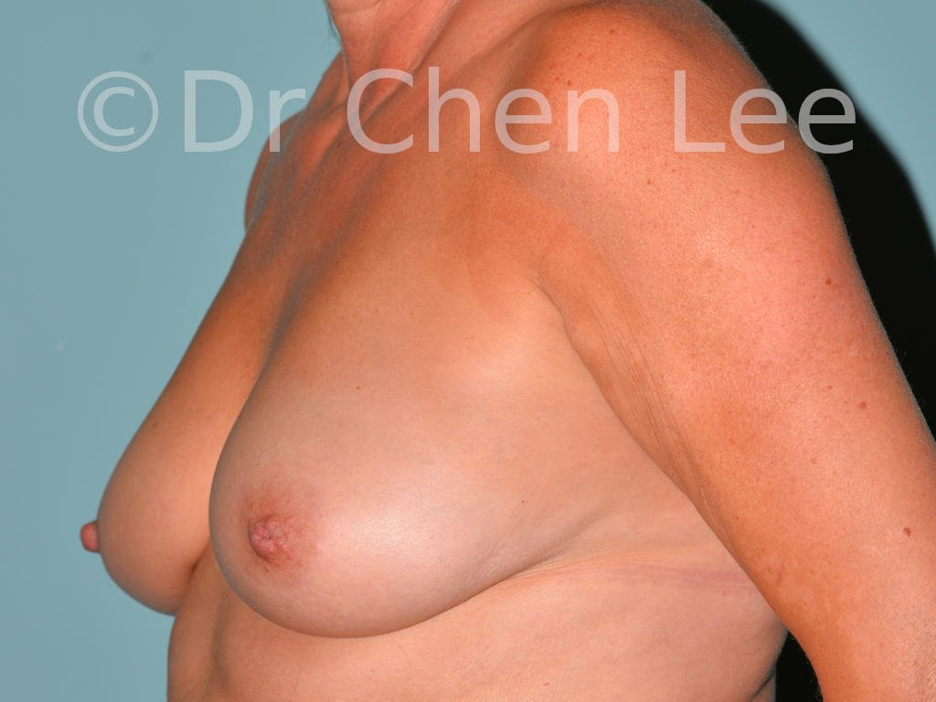Inverted nipple surgery before after left oblique photo #10