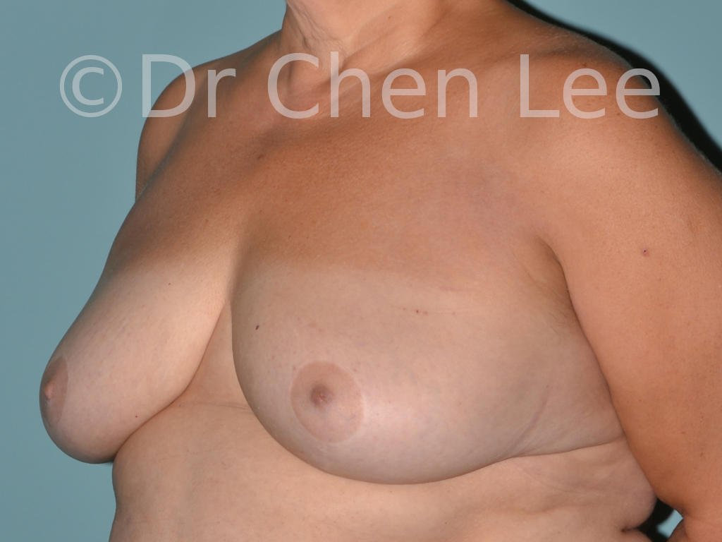 Inverted nipple surgery before after left oblique photo #03