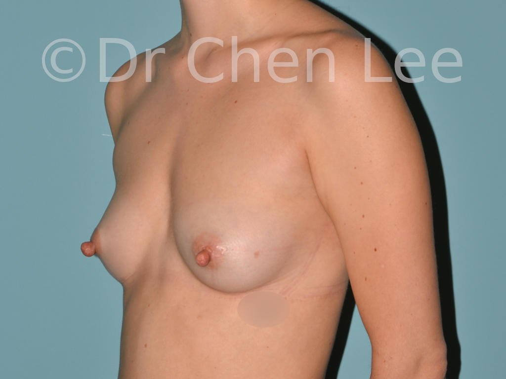Nipple reduction before after left oblique photo #01
