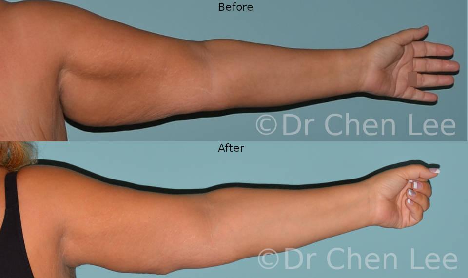 Brachioplasty before after arm lift left front photo #04