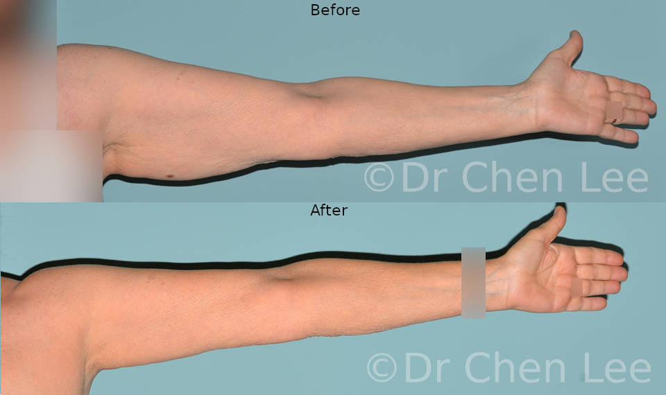 Brachioplasty before after arm lift left front photo #01