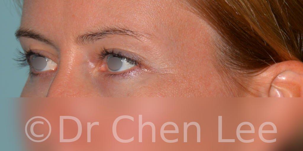 Blepharoplasty before after eyelid surgery left oblique photo #02