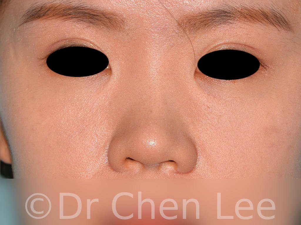 Nonsurgical rhinoplasty before after nose injection hyaluronic acid filler front photo #04