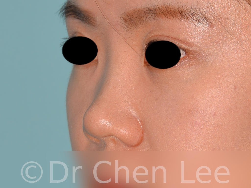 Nonsurgical rhinoplasty before after nose injection hyaluronic acid filler left oblique photo #04