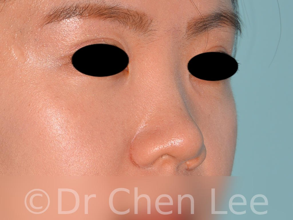 Nonsurgical rhinoplasty before after nose injection hyaluronic acid filler right oblique photo #04