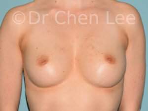 Inverted nipple surgery before after front photo #05