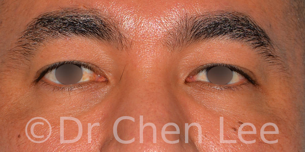 Asian blepharoplasty before after eyelid surgery front photo #02