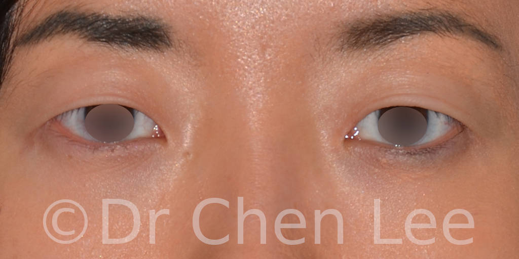 Asian blepharoplasty before after eyelid surgery front photo #03