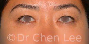 Asian blepharoplasty before after eyelid surgery front photo #04
