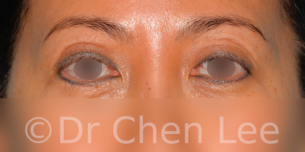 Asian blepharoplasty before after eyelid surgery front photo #05