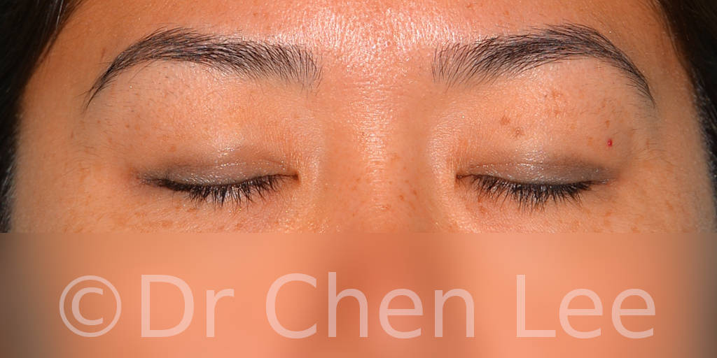 Asian blepharoplasty before after eyelid surgery front closed photo #04