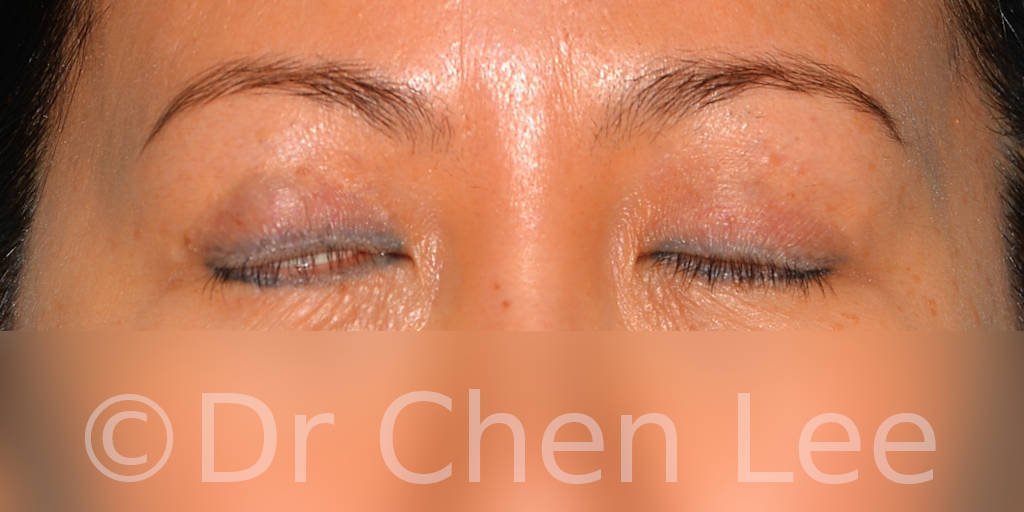 Asian blepharoplasty before after eyelid surgery front closed photo#05