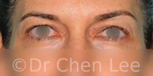 Blepharoplasty before after eyelid surgery front photo #05