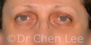 Blepharoplasty before after eyelid surgery front photo #08