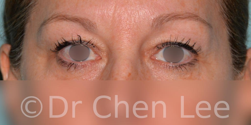 Blepharoplasty before after eyelid surgery front photo #04