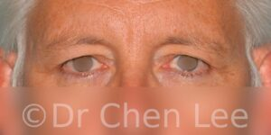 Blepharoplasty before after eyelid surgery front photo #03