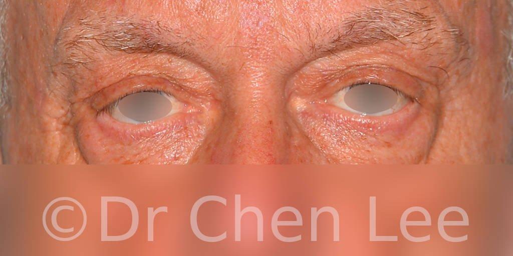Blepharoplasty before after eyelid surgery front photo #12