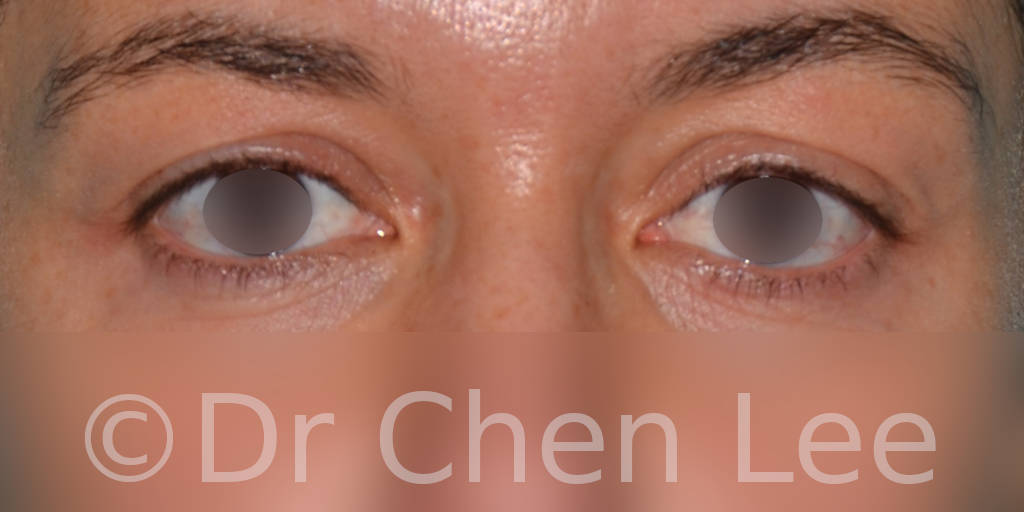 Blepharoplasty before after eyelid surgery front photo #01