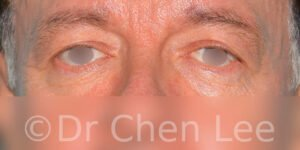 Blepharoplasty before after eyelid surgery front photo #06