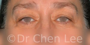 Blepharoplasty before after eyelid surgery front photo #11