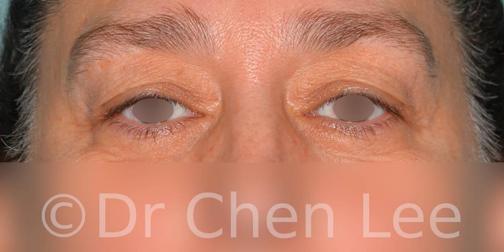 Blepharoplasty before after eyelid surgery front photo #11