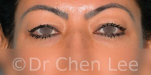 Blepharoplasty before after eyelid surgery front photo #10