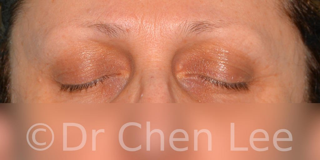 Blepharoplasty before after eyelid surgery front closed photo #08