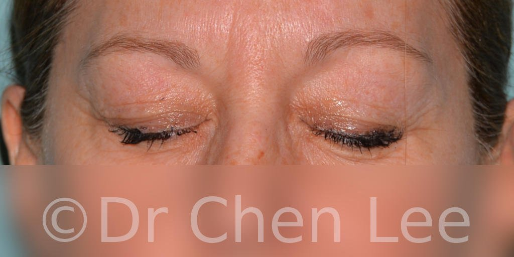 Blepharoplasty before after eyelid surgery front closed photo #04