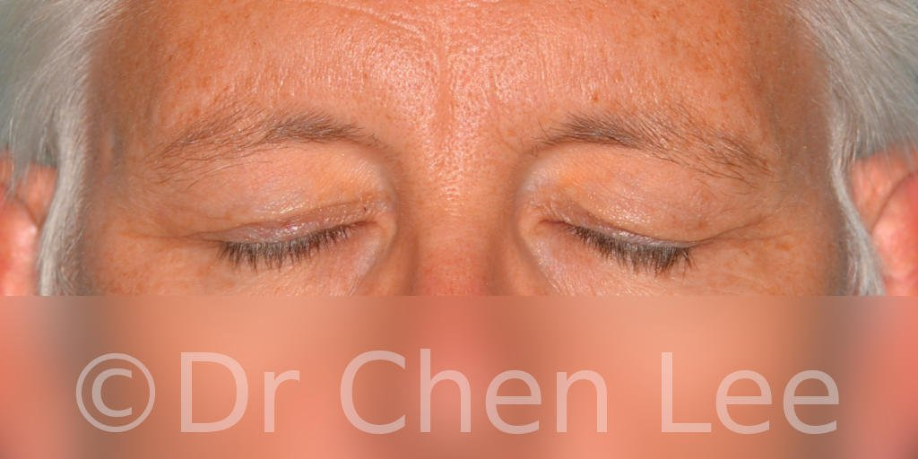 Blepharoplasty before after eyelid surgery front closed photo #03