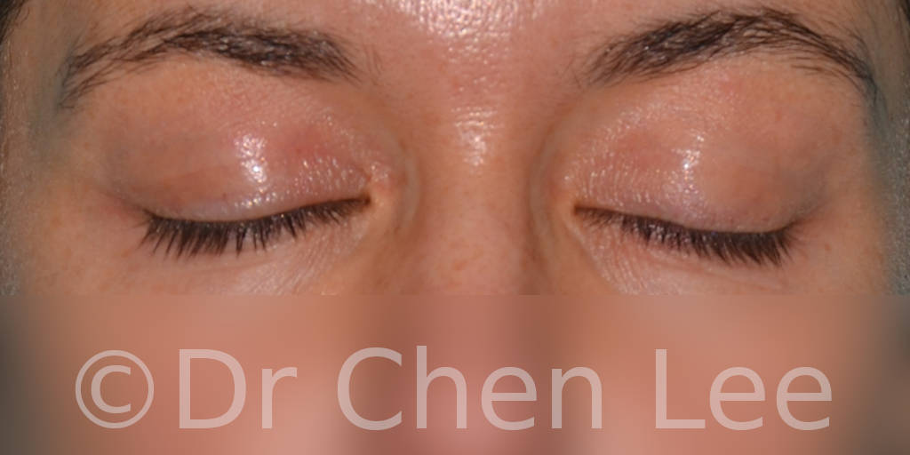 Blepharoplasty before after eyelid surgery front closed photo #01