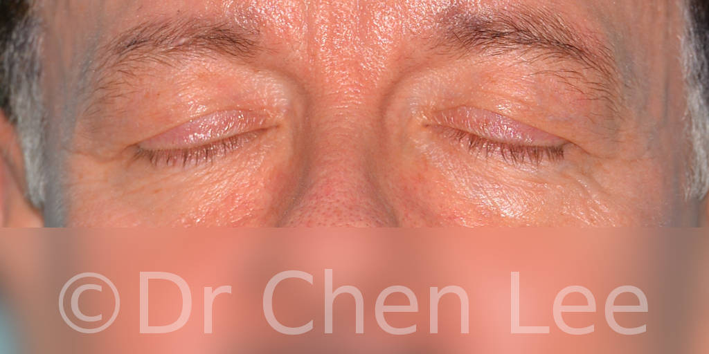 Blepharoplasty before after eyelid surgery front closed photo #06