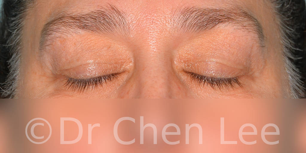 Blepharoplasty before after eyelid surgery front closed photo #11