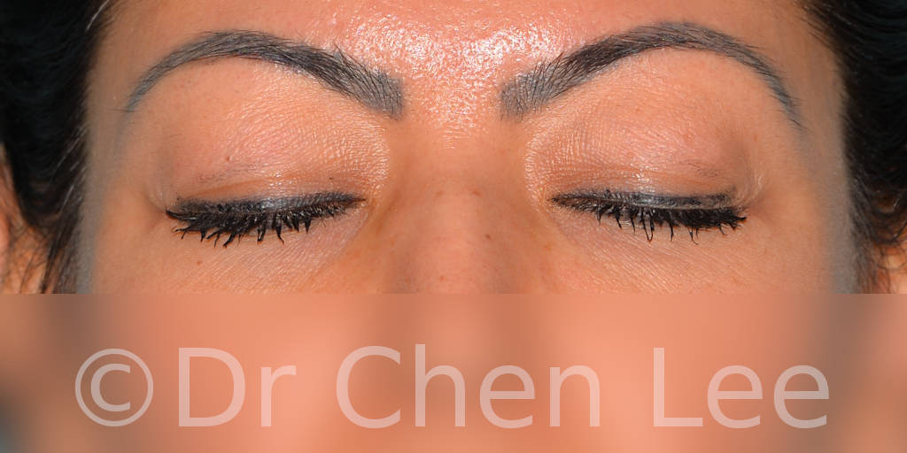 Blepharoplasty before after eyelid surgery front closed photo #10