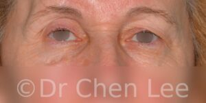 Blepharoplasty before after eyelid surgery front photo #07