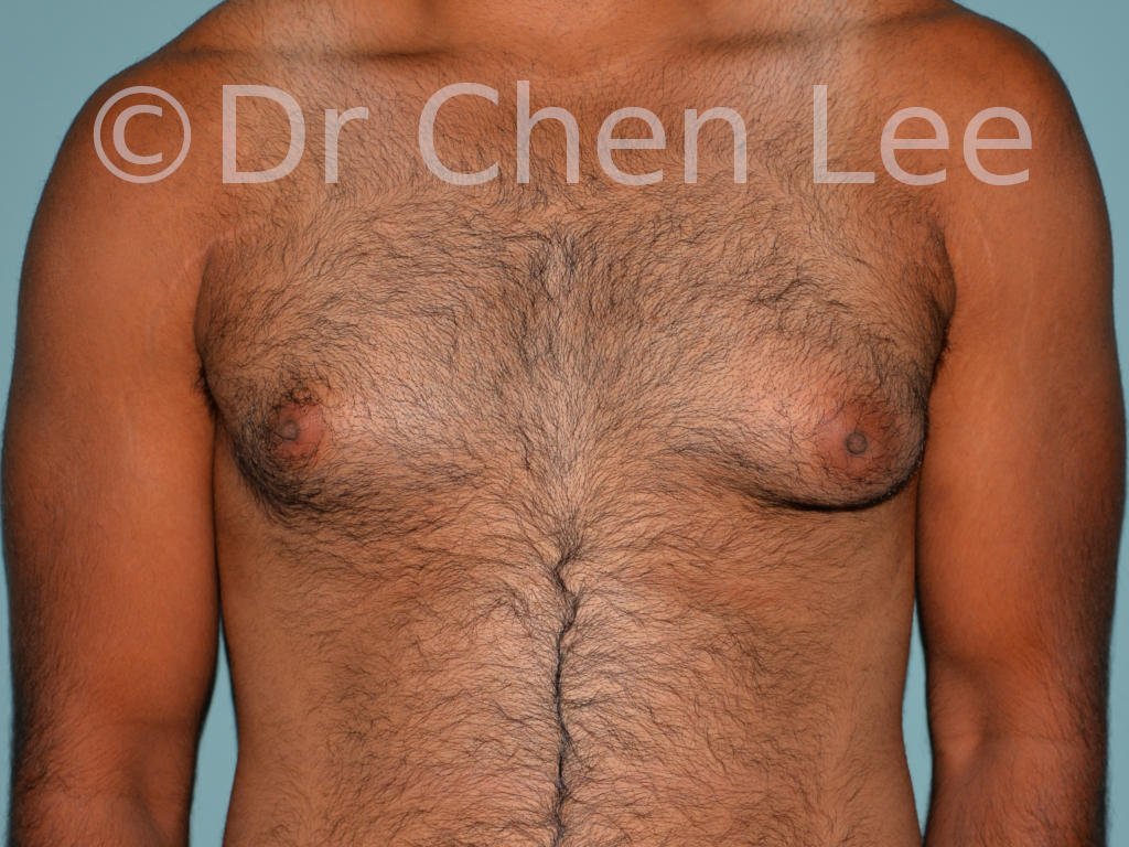 Gynecomastia surgery before after male breast reduction frontal view photo #02