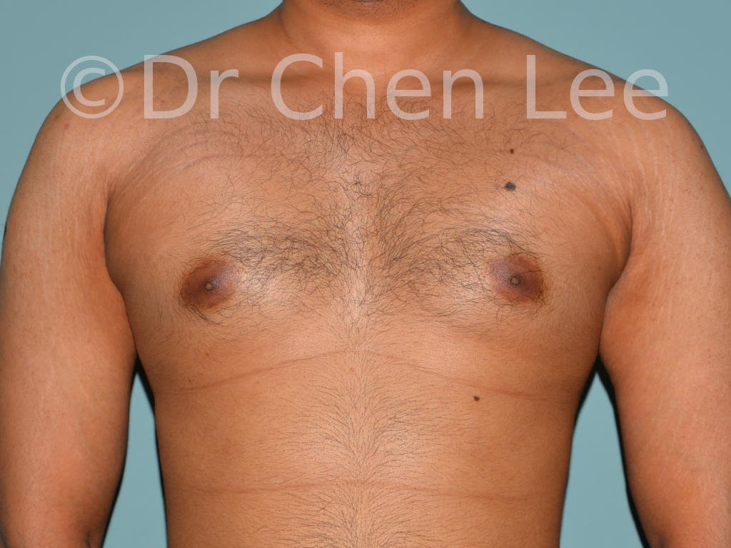Gynecomastia surgery before after male breast reduction frontal photo #06