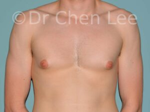 Gynecomastia surgery before after male breast reduction frontal photo #14