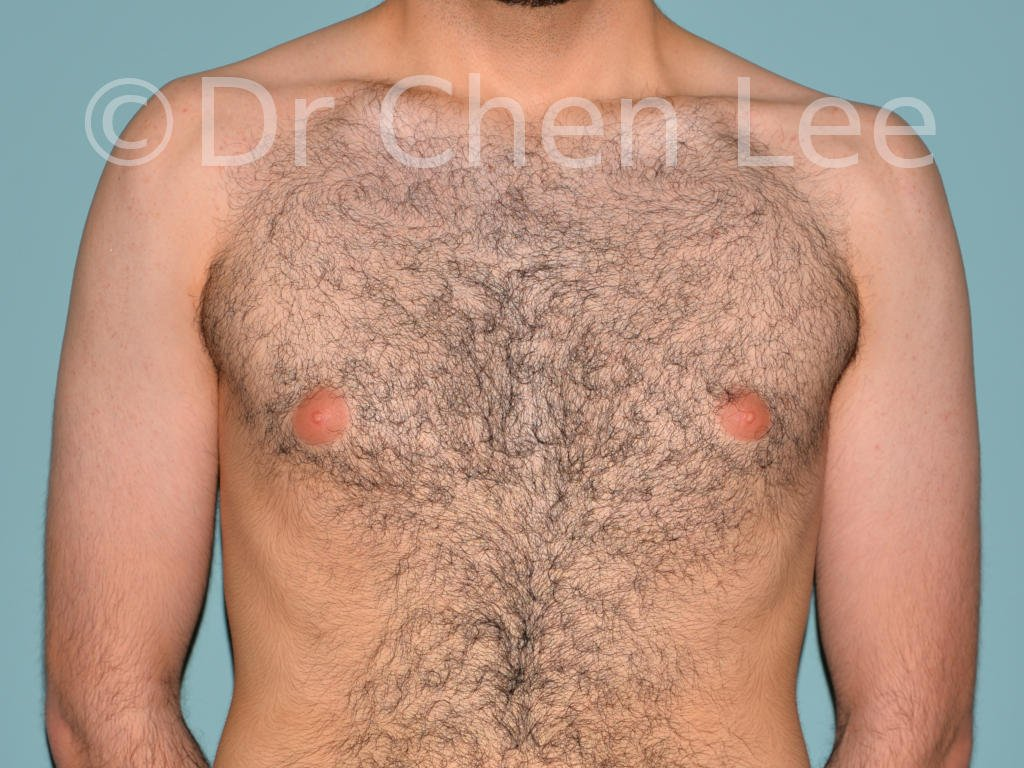 Gynecomastia surgery before after male breast reduction frontal photo #10