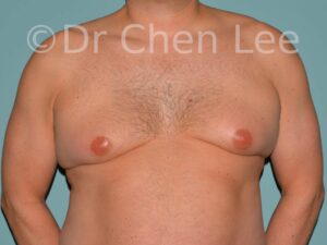 Gynecomastia surgery before after male breast reduction frontal photo #13