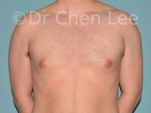 Gynecomastia surgery before after male breast reduction frontal photo #09