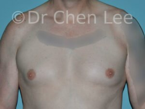 Gynecomastia surgery before after male breast reduction frontal photo #12