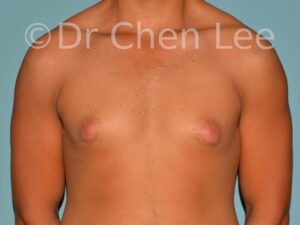 Gynecomastia surgery before after male breast reduction frontal photo #05