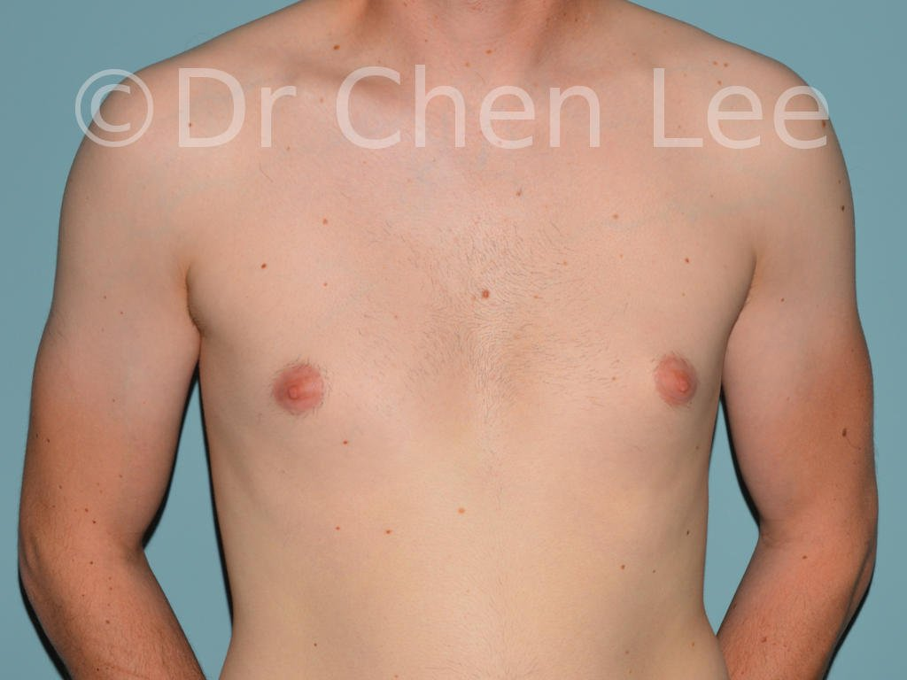 Gynecomastia surgery before after male breast reduction frontal photo #11