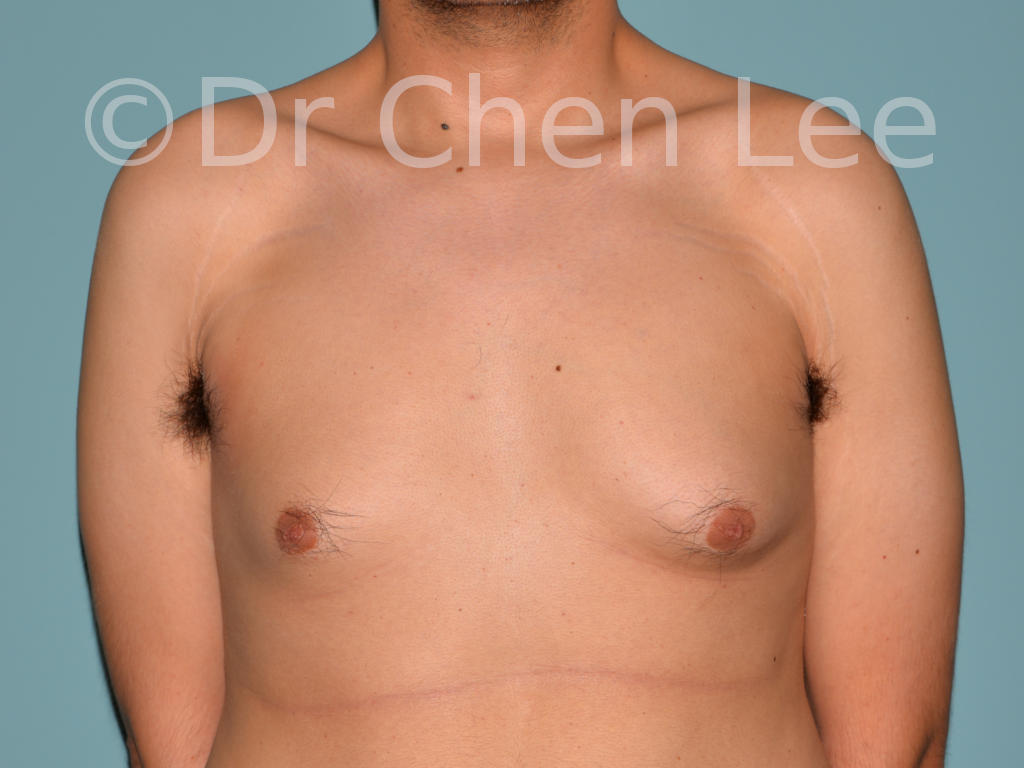 Gynecomastia surgery before after male breast reduction frontal photo #03