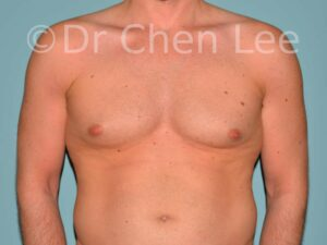 Gynecomastia surgery before after male breast reduction frontal photo #07