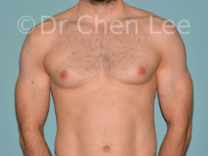 Gynecomastia surgery before after male breast reduction frontal photo #04