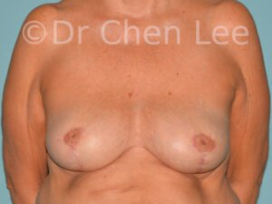 Inverted nipple surgery before after front photo #11
