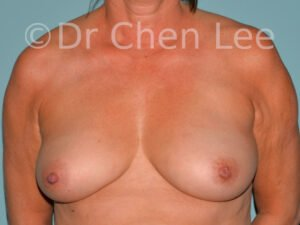 Inverted nipple surgery before after front photo #10