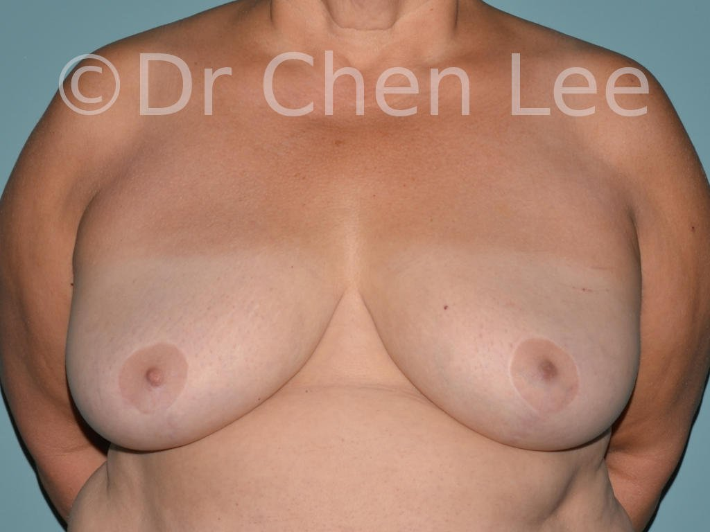 Inverted nipple surgery before after front photo #03