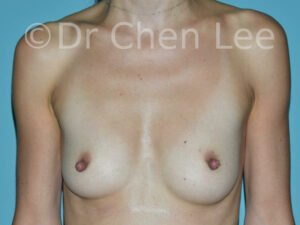Nipple reduction before after front photo #02